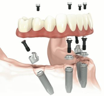 Full Mouth Implant Rehabilitation