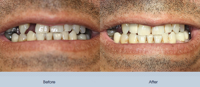 Single and Multiple Implant Restorations