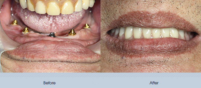 Full Mouth Implant Restoration