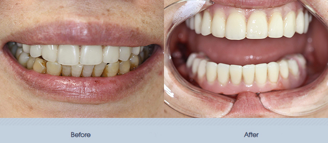 Full Mouth Implants and Fixed Dentures