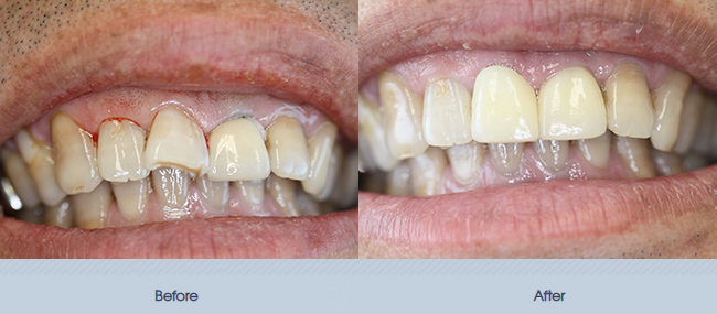 Cosmetic Crowns & Veneers